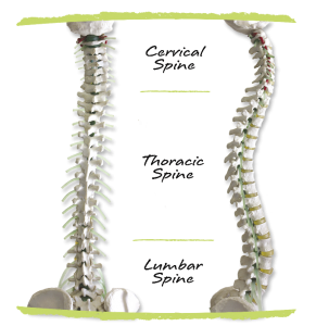 What is Scoliosis? - Setting Scoliosis Straight